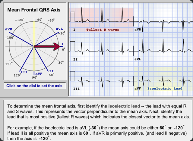 To Determine Mean Electrical Axis In Ecg on 12 lead ecg block diagram